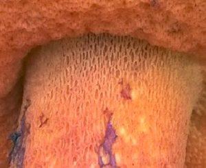 Ausschnitt StielspitzeBoletus